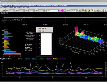 Low-Frequency-Neurofeedback